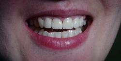 korekta kosmetyczna zębów po