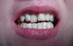 korekta kosmetyczna zębów przed