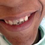 złamany ząb przed